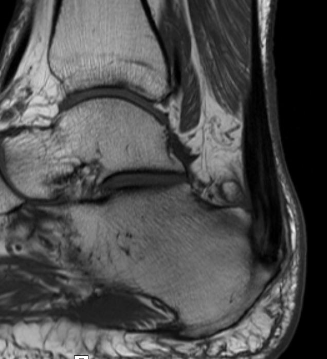Achilles MRI 1