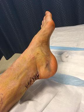 http://AchillesBlog.com/afkv/files/2018/03/kelly_ankle_resized4.jpg