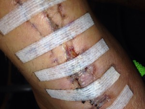 Incision 5 days after stitches out