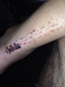 One month out picture of incision...