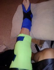 Icing both the knee and ankle