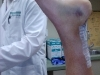 Inside of Leg