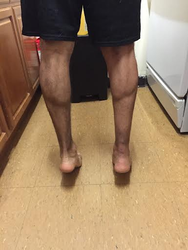 Picture of calf muscle