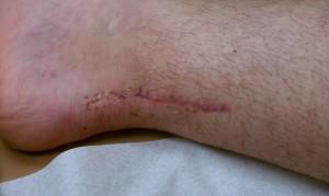 scar-near1