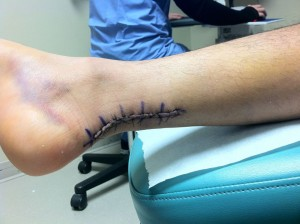 Sutures during post op OV