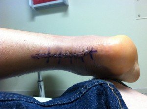 Sutures out!