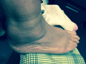ankle3weeks