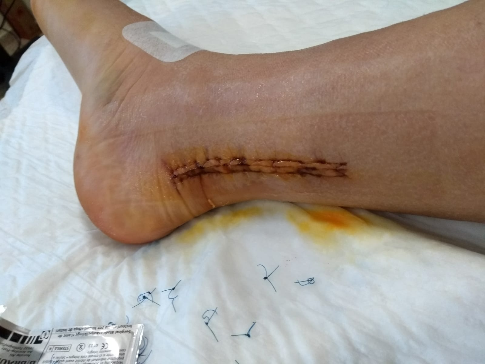 Sutures removed