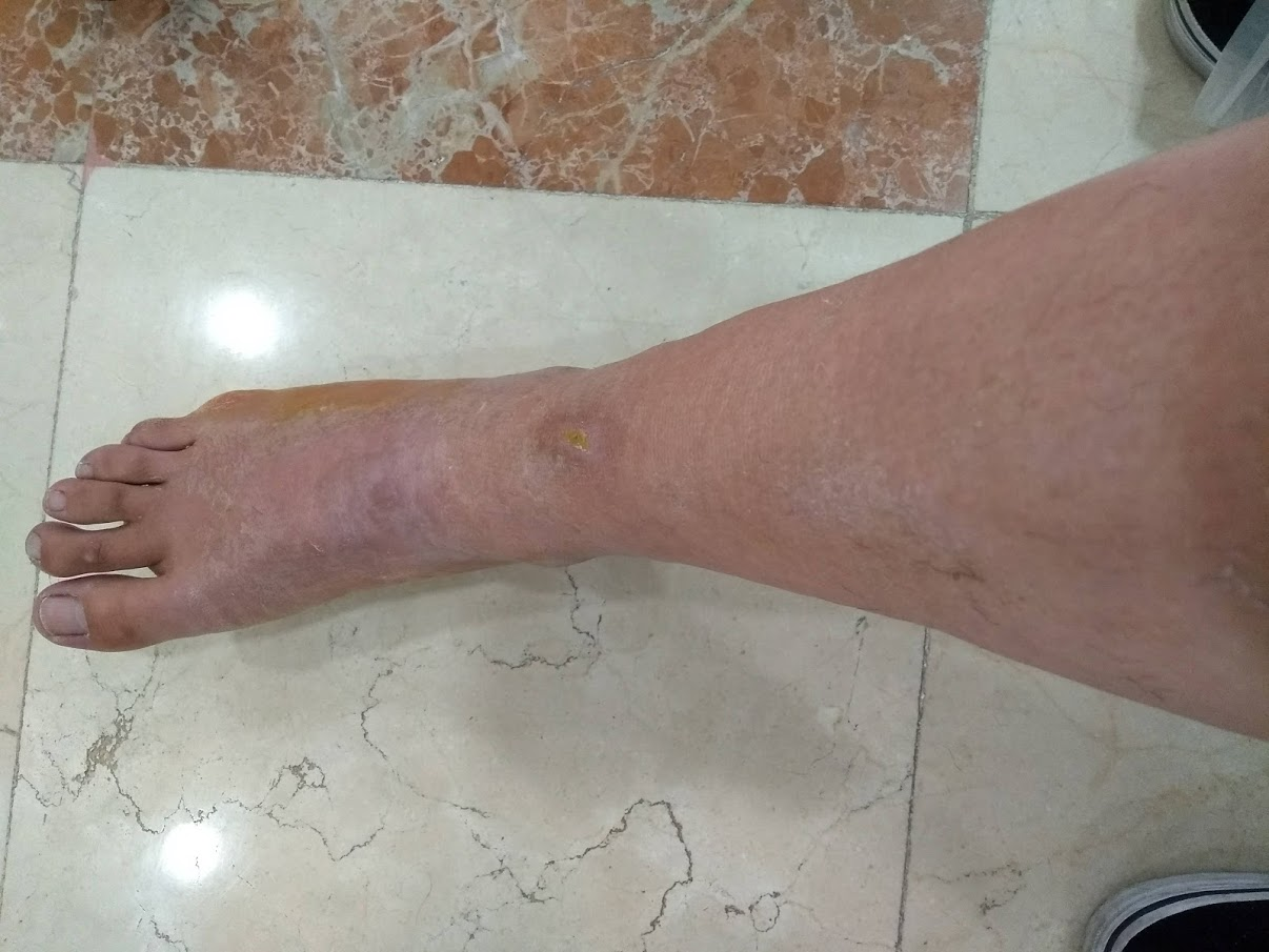 Just after getting cast removed