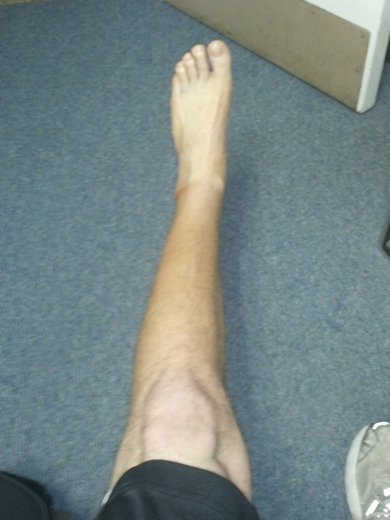 Calf atrophy