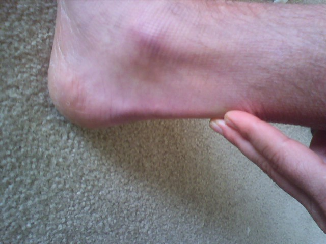8-weeks-5-days, rupture occured below fingers above ankle