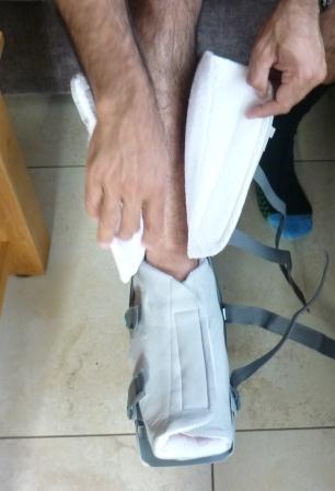 achilles tendon rupture rehab protocol nhs