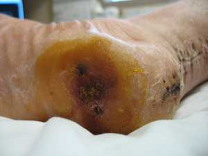 The heel after spending three weeks in close proximity to a surgical sponge soaked in iodine. Pretty.