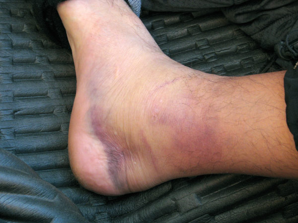 10/7/09 at 8am, 16 hours after the injury