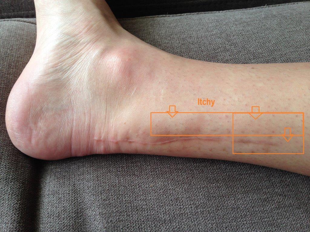 http://achillesblog.com/beanie/files/2015/12/achille-scar-14-weeks-itch-small.jpg