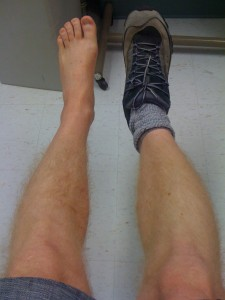 Calf atrophy comparison (boot install day - 10/28)