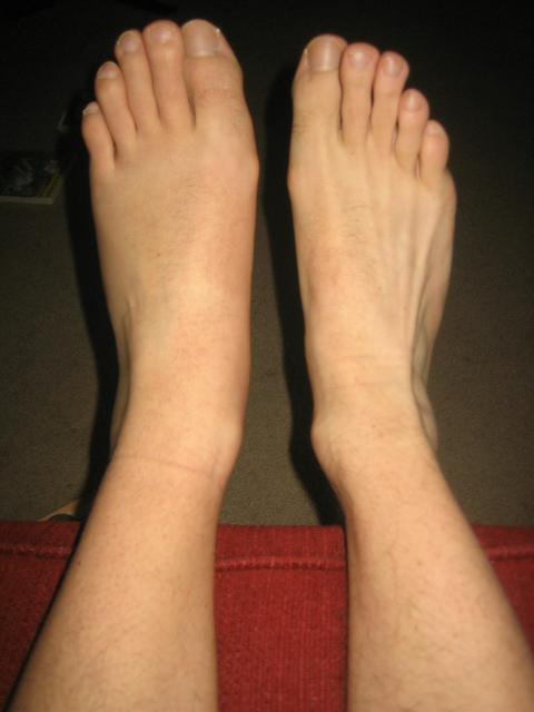 Swelling 040308