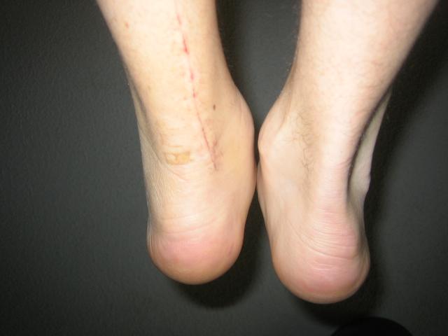 Ankle Comparison