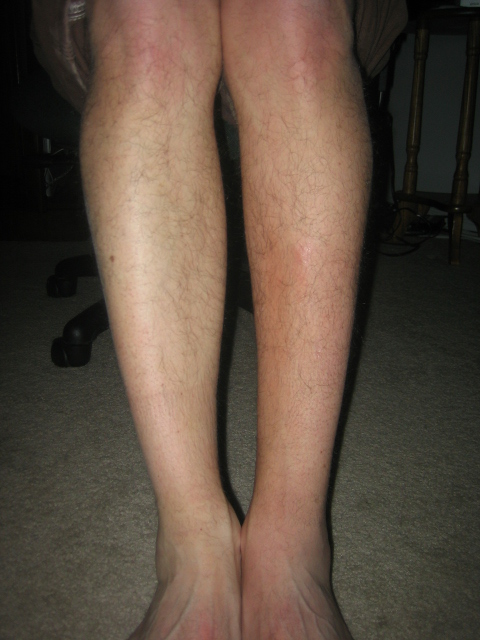 Calf Comparison Week 10
