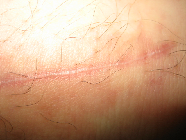 Close up of scar