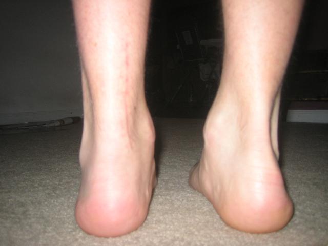 12 weeks heel