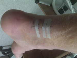 4 weeks after surgery