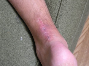 74 days after surgery, bruising around center of scar