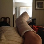 My big foot, elevated, after surgery