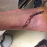 foot after suture removal