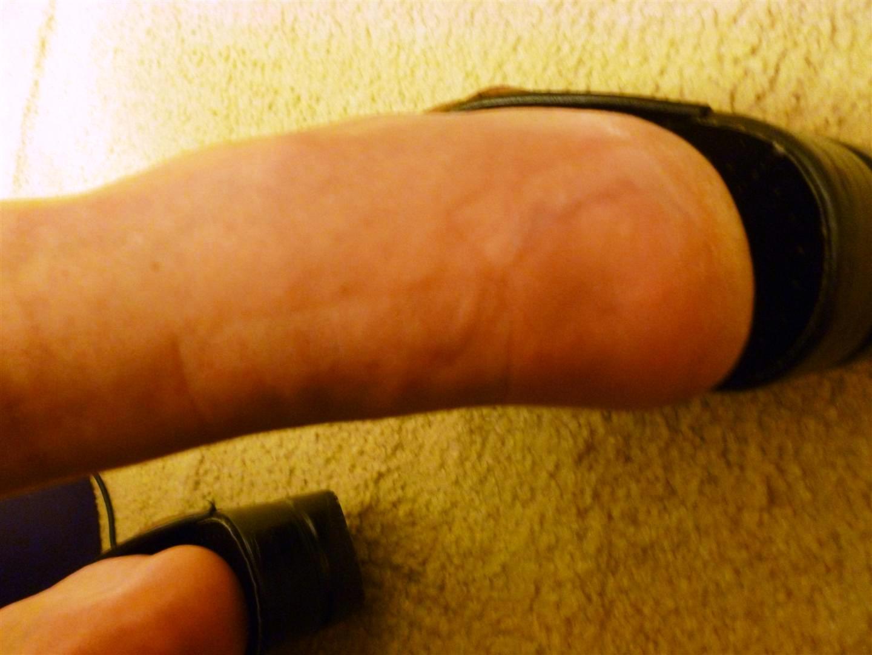 Foot/scar at week 9
