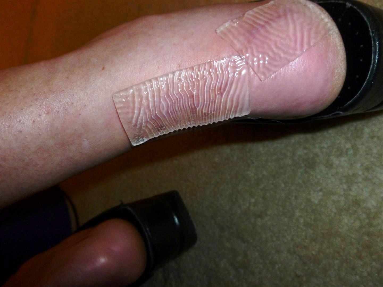 Silicon sheet on scar