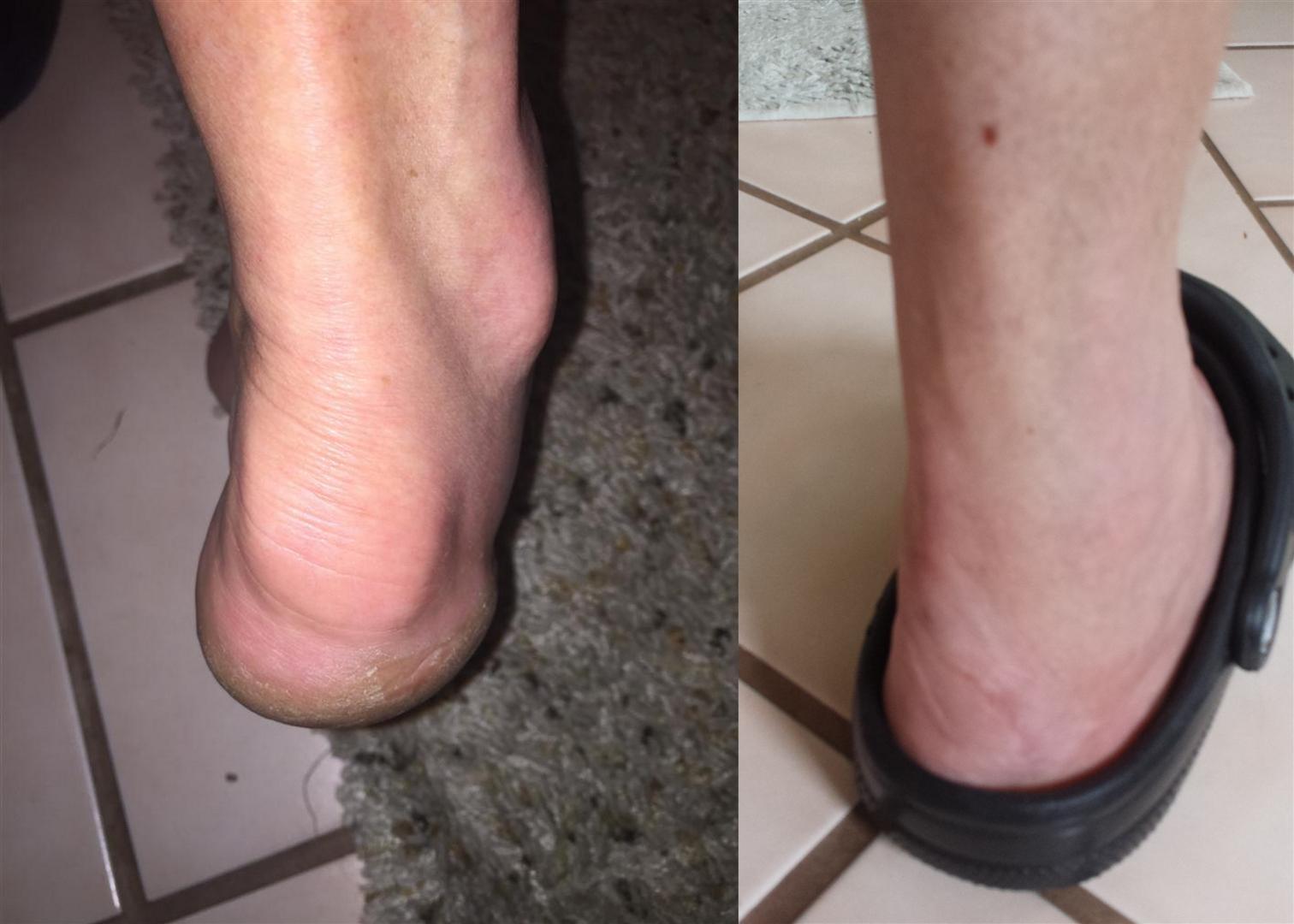Foot before surgery and at 12 week anniversary