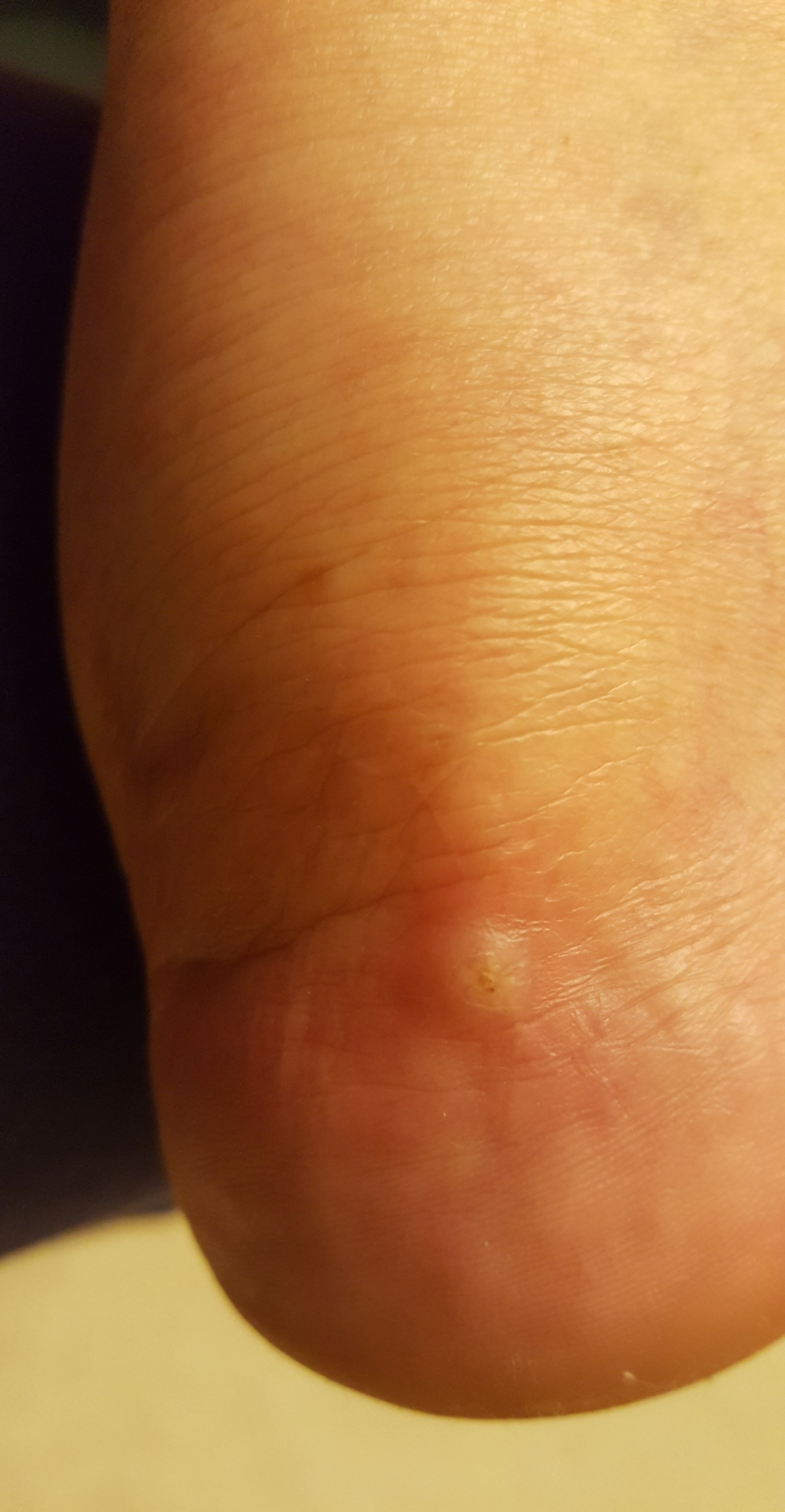 bump on my foot at 18 weeks