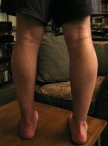Leg at seven months.