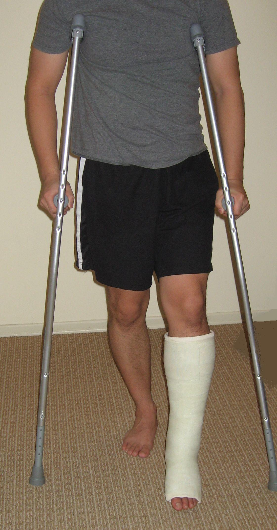 standing on crutches
