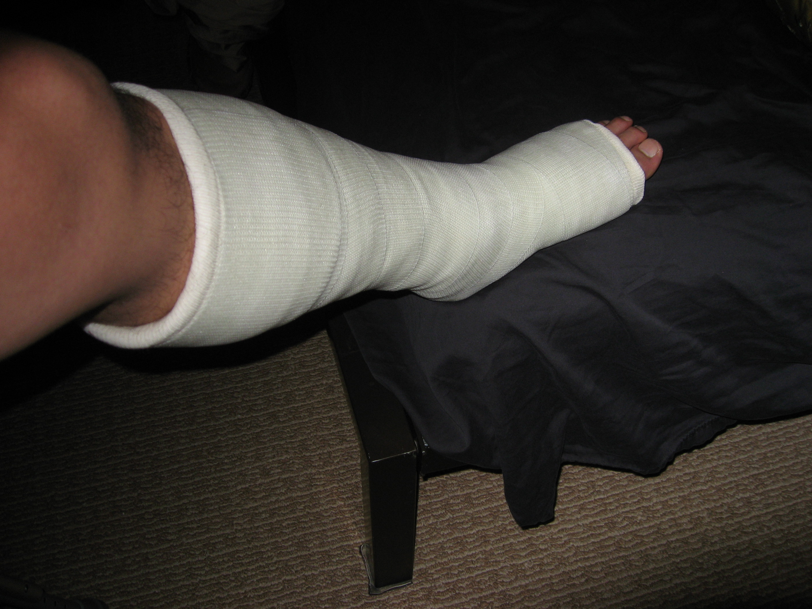 cast leg on bed