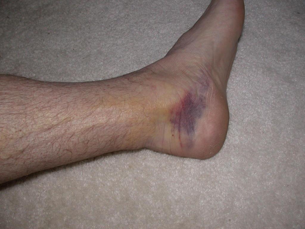 Bruised Achilles Tendon