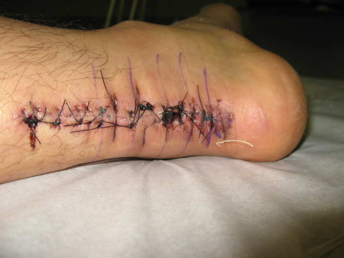 Achilles Heel Tendon Stitches