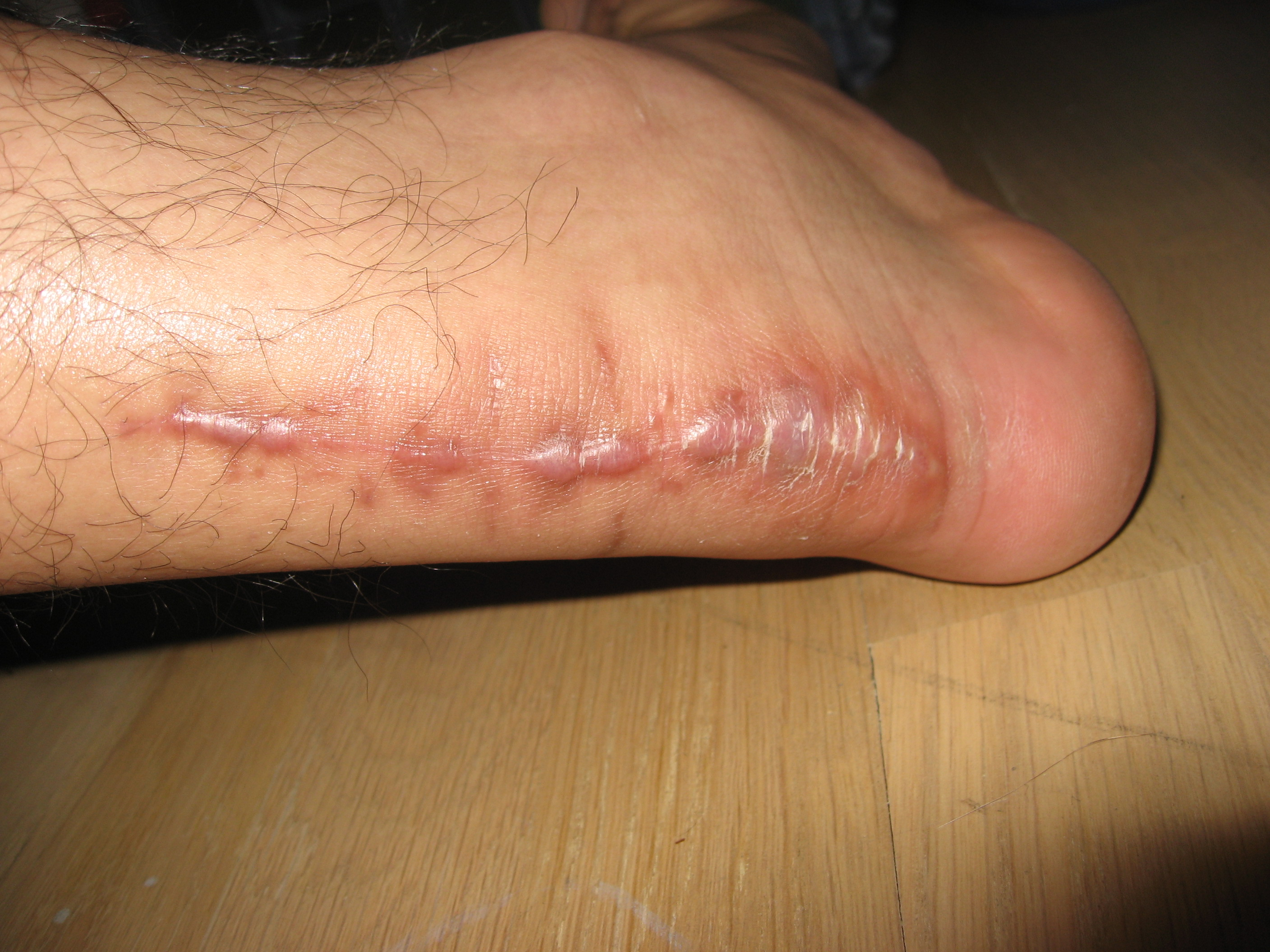 achilles tendon surgery heel scar week 13 1