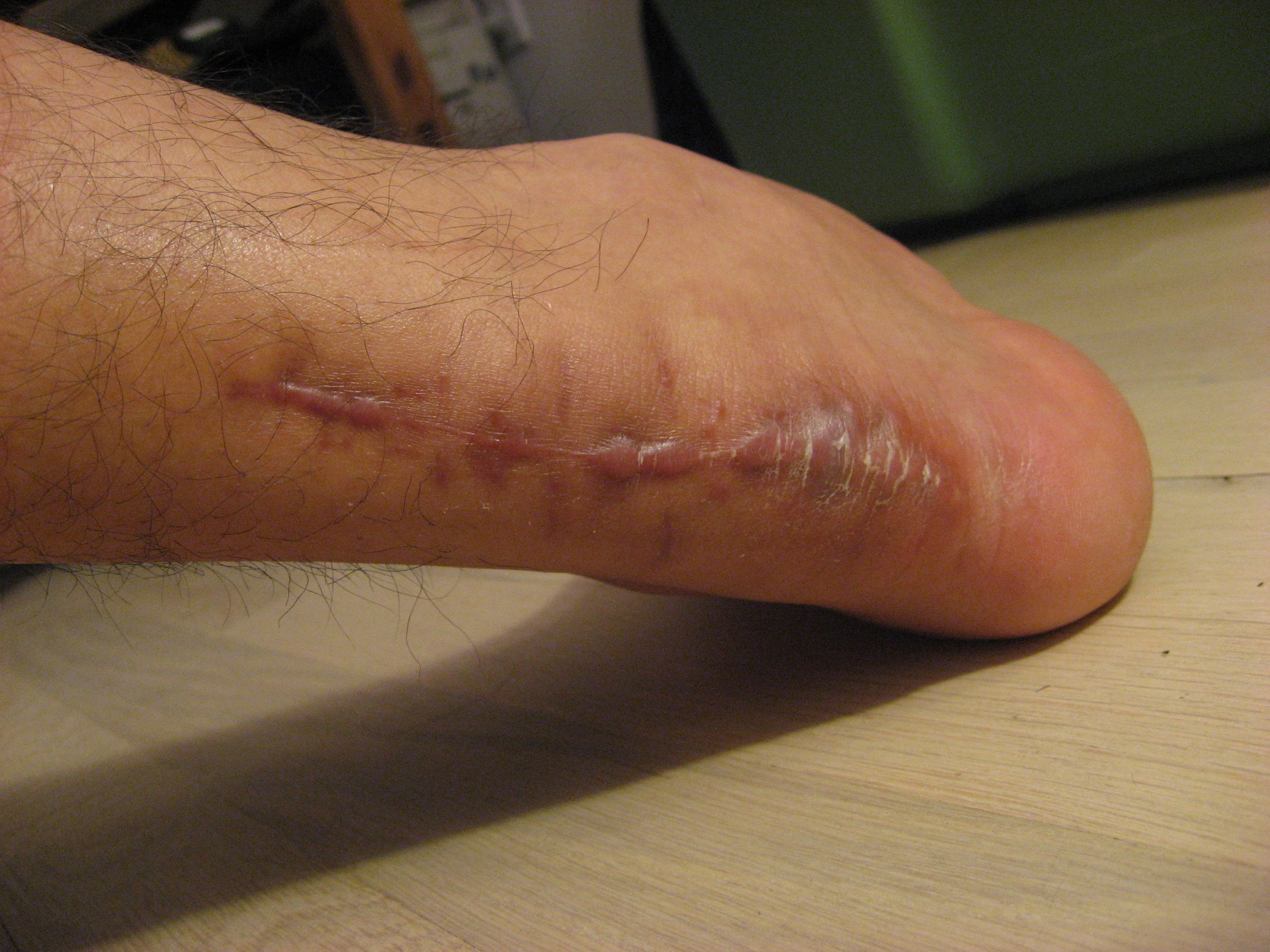 achilles tendon surgery heel scar week 13 3