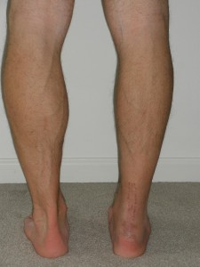 4 weeks post-op calf comparison