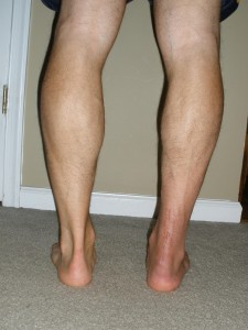 7 weeks post-op calf comparison