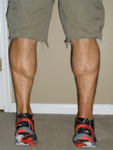 Calf Comparison and scar 13 wks post-op