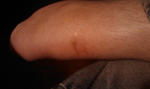 My scar