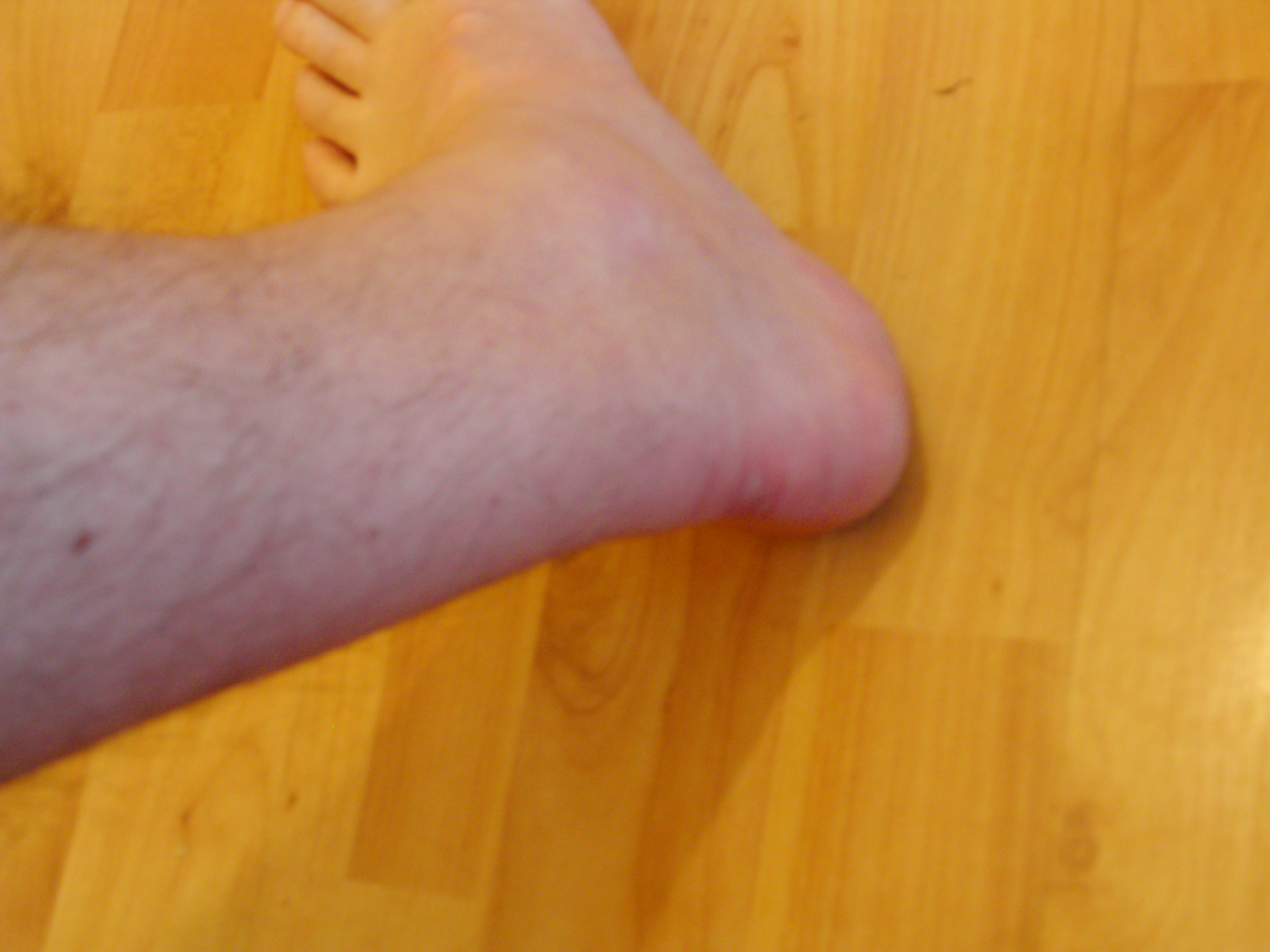Left ankle 13.05.08
