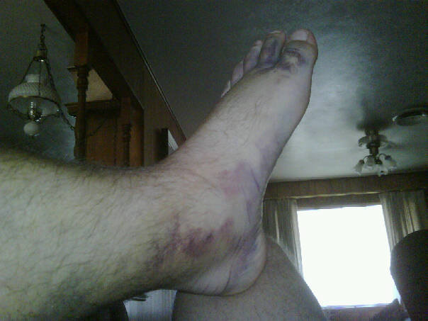3 days after injury