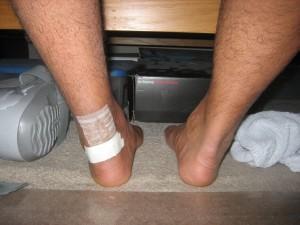 My feet ~2 weeks post op