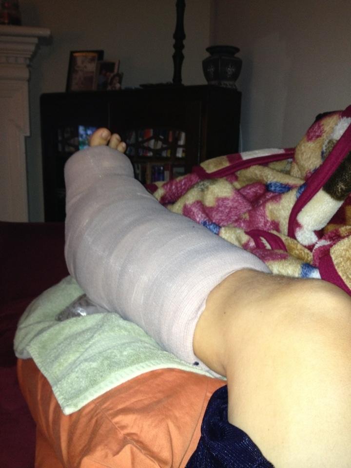 Post-op Splint Wrap