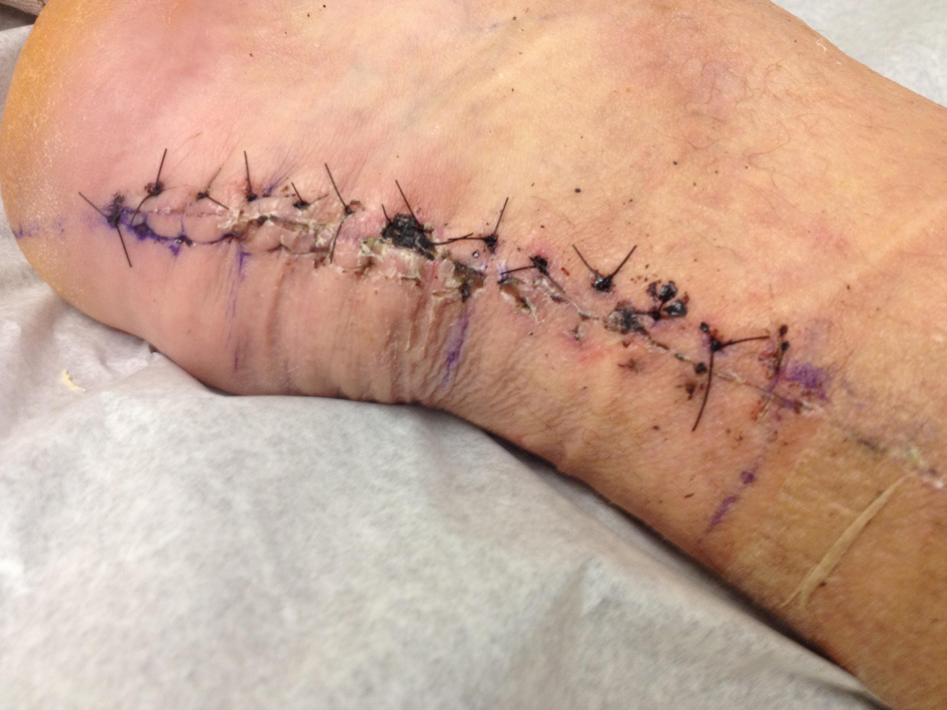 pics of stitches