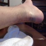 foot with bruise